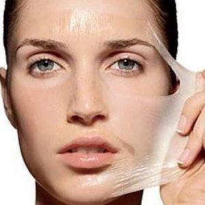 Peeling químico, ácido facial