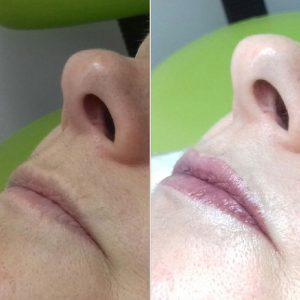 Micropigmentación 3D Hiperrealista