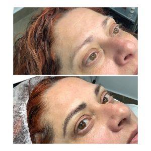 Micropigmentación Bioestética Hiart